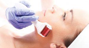 Microagulhamento para o fim das manchas, acnes e estrias